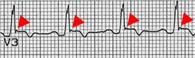 EKG lead demonstrating the epsilon wave