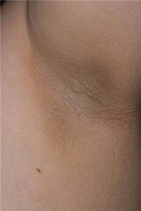 Hyperpigmented plaque with velvety textural change within the axillary fold of an adult