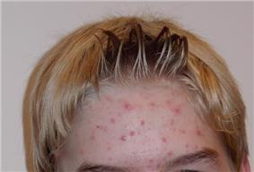 Adult forehead with scattered red pimples