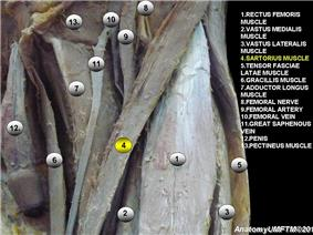Anatomical dissection4.JPG