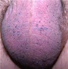 Multiple, small, blue to red papules on the scrotum