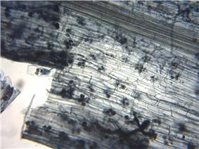 Microscopic view of a layer of translucent grayish cells, some containing small dark-color spheres