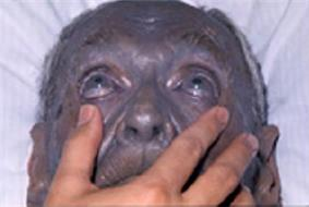 For many years, this man had used nose drops containing silver. His skin biopsy showed silver deposits in the dermis, confirming the diagnosis of argyria.