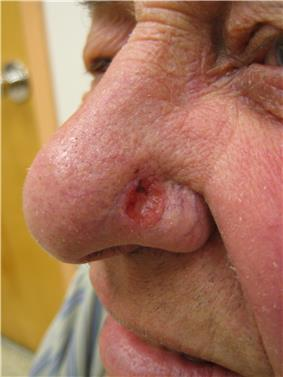 Solitary, pink, pearly appearing skin lesion on the side of an adult nose