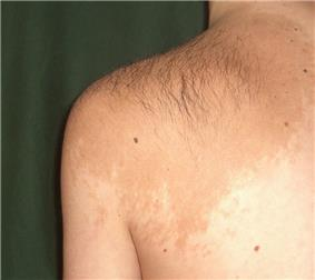 A large, light-tan colored patch of skin over an adult's left shoulder and upper back