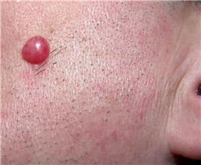 A solitary, large, red papule on the left cheek of an adult male