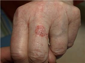 Two coalescing, red, scaly patches on the dorsal surface of an adult finger