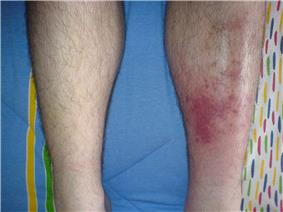Redness and mild swelling of an adult leg