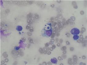 Cryptococcus smear MGG 2010-01-26.JPG