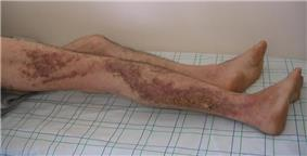 Many hyperkeratotic, vegetative, and hyperpigmented papules in a zosteriform pattern on the right lateral lower extremity of an adult