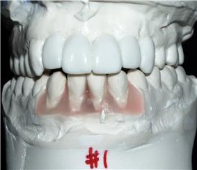 Sometimes the final position and restoration of the teeth will be simulated on plaster models to help determine the number and position of implants needed.