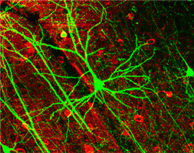 microscopic image of a neuron