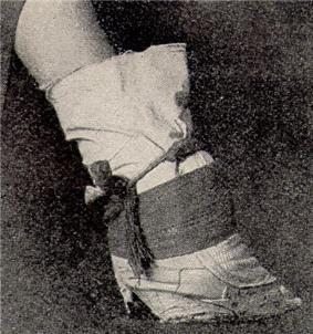 A bandaged bound foot