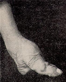 A bound foot