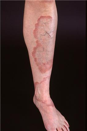 Large, well demarcated plaques with red, active borders, all located on the lower leg of an adult