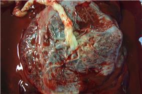 Human placenta.jpg