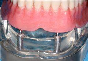 Implant retained overdenture