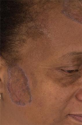 Violaceous, annular, scaly plaques on the face and scalp of an adult