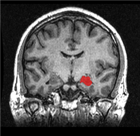 MRI coronal view of a hippocampus shown in red.