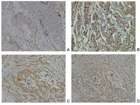 Neuropilin-2 (Nrp2) expression in normal breast and breast carcinoma tissue.jpg