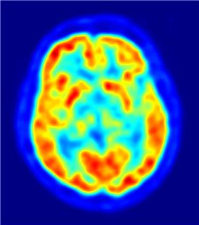 Sagittal PET scan at the level of the striatum. Hottest areas are the cortical grey matter and the striatum.