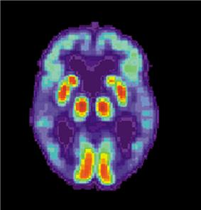 PET Alzheimer patient