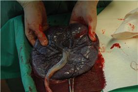 Placenta held.jpg