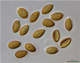 Psilocybe.cyanescens.1000x.dic.JPG
