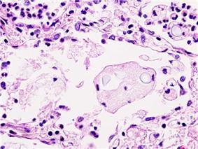 Pulmonary cryptococcosis (1) histiocytic penumonia.jpg
