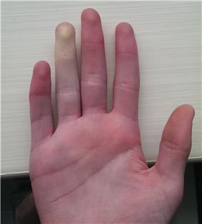 Example of Raynaud's phenomenon, viewed from the front of the hand