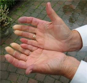 White and red discoloration of the distal fingertips