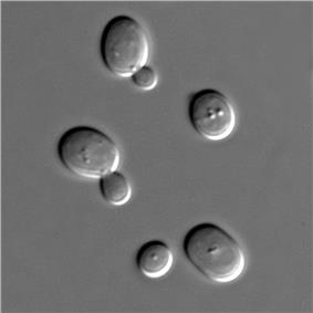 Microscopic view of five spherical structures; one of the spheres is considerably smaller than the rest and attached to one of the larger spheres