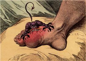 A small fierce creature with sharp teeth is biting into a swollen foot at the base of the big toe