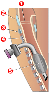 Diagram of a tracheostomy tube in the trachea