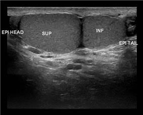 Ultrasound scan of Type A3 polyorchidism