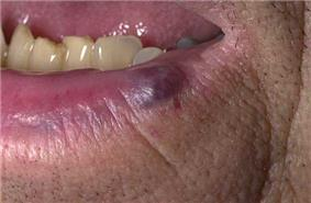 A small blue- to purple-colored lesion on the lower lip of an adult