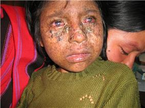 Frontal image of a child's face showing large hyperkeratotic papules and plaques with some induration suspicious for actinic keratoses and early squamous cell carcinomas